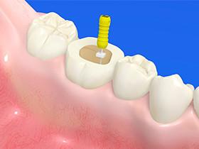 茅ヶ崎の歯医者、湘南まつだ歯科医院の「根管治療」